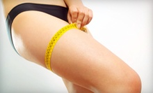 $129 for Three Laser Lipo Body-Contouring Treatments at First Health Center ($294 Value)