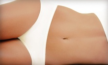 Four or Eight Lipotropic Injections with B6 and B12 at Elite MedSpa (Up to 83% Off)