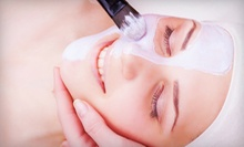 Two or Four Bliss Facials, or Six Rosacea Facials with Take-Home Skincare Products at Salon Rue Cler (Up to 57% Off)
