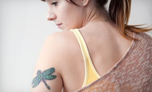 One, Three, or Six Laser Tattoo-Removal Sessions for a Small Area at Sugar Land Laser Tattoo Removal (Up to 68% Off)
