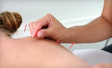 One or Three Acupuncture Sessions at The Acupuncture Lounge (Up to 63% Off)