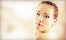 One or Three SilkPeel Microdermabrasion Treatments at Crystal Lume Medical Spa (Up to 79% Off)