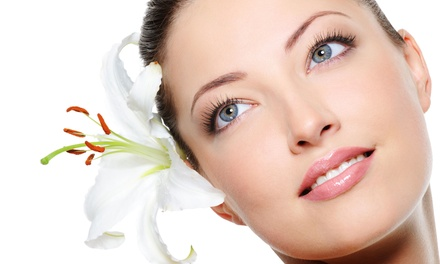 One or Two Medical-Grade Chemical Peels at Avalon Laser (Up to 80% Off)