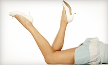 One or Two Spider-Vein Sclerotherapy Treatments at Vascular Access Centers (Up to 72% Off)