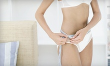 6 or 12 i-Lipo Laser Treatments at Universal Body Image and Laser Center (Up to 73% Off)