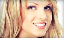 Exam, Cleaning, X-rays, and Optional Whitening Kit at Family Dentistry of South Austin and Round Rock (Up to 89% Off)