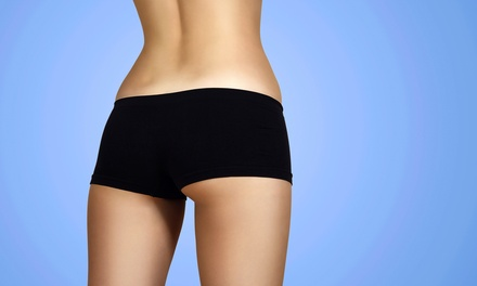3, 6, or 10 Zerona Body-Contouring Laser Treatments at Inland Center Medical Group (50% Off)