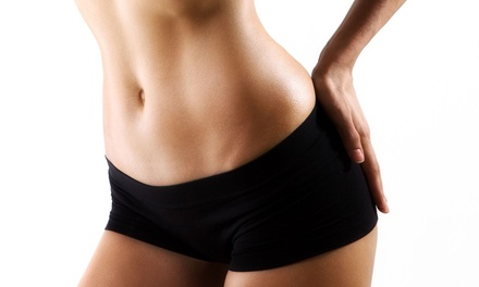 One, Three, or Four Laser Lipo Sessions with a Body Vibration at Hardison Family Chiropractic (Up to 82% Off)