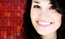 Dental Package with Optional Screening and Whitening at Lana Rozenberg D.D.S. (Up to 91% Off). Three Options Available.
