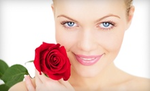 One or Two Diamond-Peel Microdermabrasion Treatments at The Medispa Institute (Up to 56% Off)
