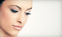 Microdermabrasion and FotoFacials at Body & Soul Medical and Holistic Spa (Up to 84% Off). Four Options Available.