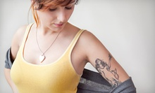 "Two Laser Tattoo-Removal Sessions for a 2""x2"", 2""x3"", or 3""x3"" Area at Gonzalez & Carr, PC (Up to 78% Off)"
