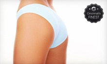 Three or Six LipoLaser Treatments at LipoLaser of West Chester, Inc. (78% Off)