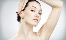 Laser Hair Removal on a Small, Medium, or Large Area at PREMIERE Center for Cosmetic Surgery (Up to 95% Off)