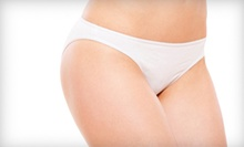 Laser Cellulite-Reduction Treatments at Healthy Being Wellness Center (Up to 66% Off). Three Options Available. 