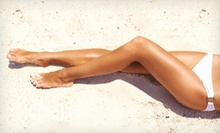 Six Laser Hair-Removal Treatments for a Small or Medium Area at SpaForever (Up to 87% Off)
