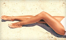 Six Laser Hair-Removal Sessions on a Small, Medium, or Large Area or the Whole Body at iSpa (Up to 88% Off)