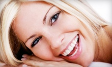 $49 for Chair-Side Teeth Whitening at Bella Teeth By Nicole in Kenmore (Up to $125 Value)