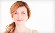Vibradermabrasion and Chemical Peels at Medspa at The Women's Centre for Excellence (Up to 74%). Four Options Available.