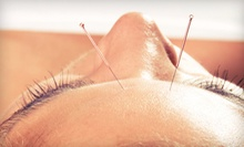 One, Two, or Three Acupuncture Sessions with an Initial Consultation at H&amp;J Healing Clinic (Up to 83% Off)