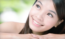 $199 for Four Needleless Mesotherapy Photo Facials at Avora Skin Spa in Coquitlam ($680 Value)