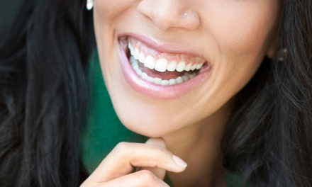 $39 for a New-Patient Dental Package with Two Exams, X-rays, and Cleanings at Platinum Dental Care ($484 Value)