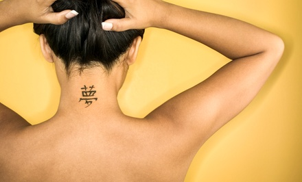 Three Laser Tattoo Removal Sessions for Three, Six, or 10-Inch Areas at Rockwall Laser Center (Up to 82% Off).