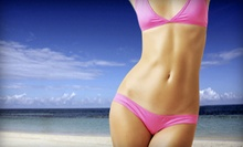 $149 for Three Body-Sculpting Noninvasive Fat Reduction Treatments at Beauty of Wax ($447 Value)