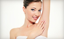 Three Laser Hair-Removal Treatments on a Small, Medium, or Large Area at Kalologie Medspa (Up to 68% Off)