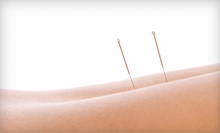 Two, Four, or Six Acupuncture Treatments with Exam and X-ray at Oliver Chiropractic and Acupuncture (92% Off)