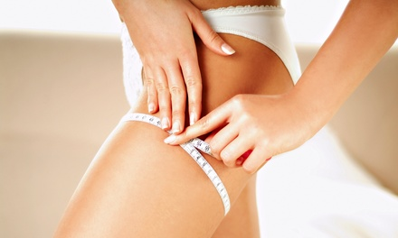 One or Four Anti-Cellulite Sessions at Rebecca Stone Aesthetics (Up to 51% Off)