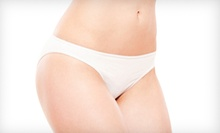 Two, Four, or Six Laser Body-Contouring Treatments at Lipo Laser of NorthWest Indiana in Merrillville (Up to 81% Off)