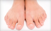 One or Three Laser Nail-Fungus Treatments for Both Feet at Alpha Chiropractic &amp; Physical Therapy (Up to 87% Off)