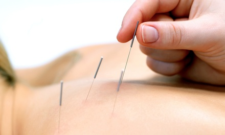 $49 for Acupuncture Session Up to 60 Minutes at Eastern And Western Medical Center ($90 Value)