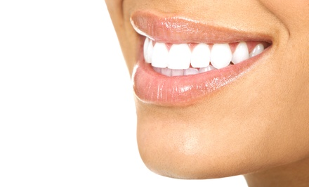 Dental Cleaning, X-rays, Exam and Consultation or In-Office Teeth Whitening at Champion Dental (Up to 91% Off)