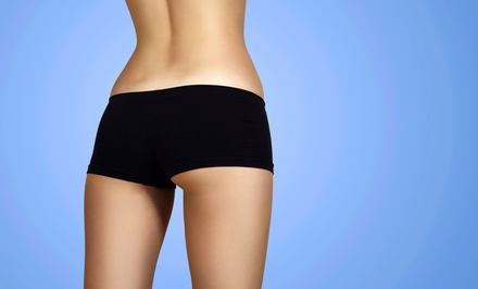Laser Spider-Vein Treatments at Luxe Laser Vein & Body Center (Up to 63% Off). Three Options Available.