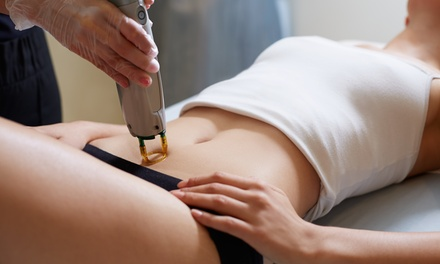 Laser Hair Removal at LaserTouch Aesthetics (Up to 88% Off). Six Options Available.