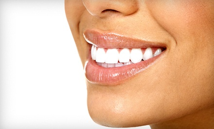 $99 for a Boost Whitening Treatment at Stephen Conrad, DDS