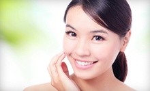 $60 for a One-Hour Facial at Susan Davina Electrolysis &amp; Skincare