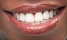 $420 for a In-Office Zoom Teeth Whitening Session at 3V Dental Associates