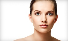 $35 for a Grekin Natural Peel at Skin Perfection Detroit
