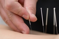$47 for a Acupuncture and Massage Treatment  at Restorative Healing