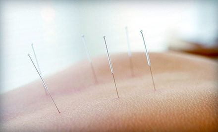 $25 for One Acupuncture Session at Langara Acupuncture Clinic