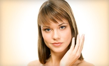 $29 for a 30-Minute Microdermabrasion at Iris Beauty Solution
