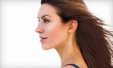 $99 for Ultherapy Brow Lift at U-Care Health Screenings