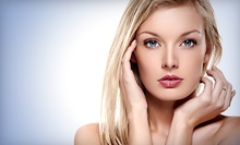 $85 for a Microdermabrasion Treatment at Essential Skin Therapy