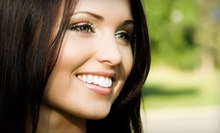 $250 for a 45-Minute Zoom Whitening Session at Smile Arts of NY
