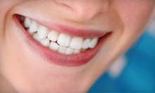 C$49 for an In-Office Teeth Whitening Treatment at New Look Laser