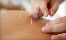 $40 for a 60-Minute Acupuncture Session and Herbal Consultation at Gao's Acupuncture &amp; Herbal Therapy Center