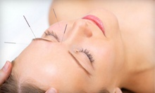 $19 for a One-Hour Acupuncture Session with Cupping at ON Acupuncture Clinic